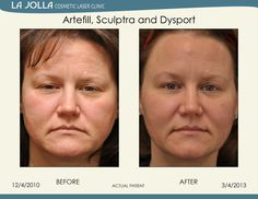Patient treated with Artefill, Sculptra and Dysport at La Jolla Cosmetic Laser Clinic. Under Eye Fillers, Under Eye Primer, Laser Clinics, Under Eye Concealer, Dermal Fillers, Relaxer, La Jolla, Skin Problems, Plastic Surgery