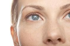 WHERE EXACTLY ARE THE INCISIONS MADE FOR A BROWLIFT?