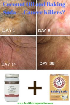 Thanks to these two mixed together, a lady with basal cell carcinoma skin cancer on her head was healed.