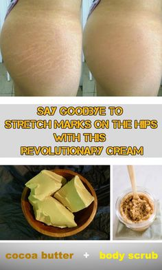 Say goodbye to stretch marks on the hips with this revolutionary cream