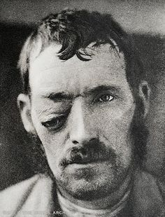 Orbital abscess with displacement of the eye, 1908  In pre-antibiotic days orbital cellulitis and abscess could result from infections in the upper respiratory tract, sinusitis, furuncles or other infection on the face. This abscess has displaced the eye downward. As the eye is protected in a boney socket with little room for pus or tumor tissue hence it is easily forced from its socket. The infection easily spreads to the brain along the optic nerve or through blood vessels draining the…