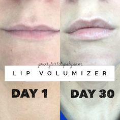 SeneGence Lip Volumizer Day 1 to Day 30 Not only can I SEE a difference, I can FEEL a difference! No tingling or burning and long lasting results. This stuff actually works! Facebook.com/groups/prettylittlelipsbysam @prettylittlelipsbysam Prettylittlelipsbysam@gmail.com