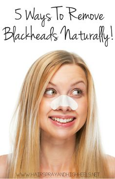 Get Rid Of Blackheads Naturally!  via www.hairsprayandhighheels.com
