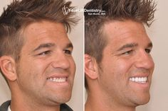 A prepless Porcelain Veneers treatment is you need to boost up you smile. Its the most effective and pain free method for those who are afraid of surgical treatment. Click to the provided link to get the best information on this life changing service.   #preplessPorcelainVeneers http://www.thedaviedentist.com/home
