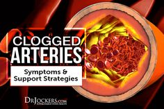 Clogged Arteries: Causes, Symptoms & Support Strategies