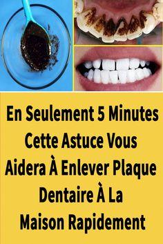 Dental Care, Teeth, Health Fitness, Plaque, Healthy, Hui, Food, Decor, Cavities