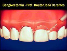 Gengivectomia - Prof. Doutor João Caramês   Odonto-TV