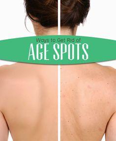 Ways to Get Rid of Age Spots | Medi Tricks