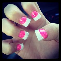 Pink/White duck feet nails with French tips -- these are horrendous but I HAD to pin this because this person has my thumb! Brachydactyly Type D! Gorgeous Nails, Love Nails, Pretty Nails, My Nails, Prom Nails, Sexy Latex, French Nails, Duck Feet Nails, Pink Nail Designs