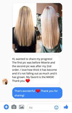 Ultimate Mineral Hair Growth Serum Spray – Moerie Hair Loss Cure, Oil For Hair Loss, Hair Gain, Hair Grower, Hair Mask For Growth, Hydrate Hair, Hair Loss Shampoo, Hair Breakage, Healthy Hair Growth