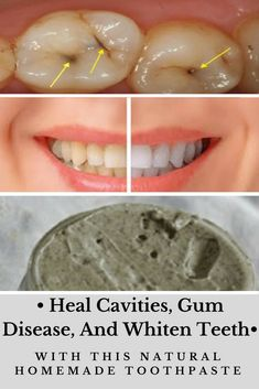 How to Whiten Teeth Naturally at Home #teethnaturalremedies
