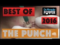Pimple Popper collected her best 'punch' removals of 2016 into 15 minutes of pure joy Pimples On Chin, Pimples Under The Skin, Epidermoid Cyst, Nummular Eczema, Psoriasis On Face, Pimple Popping, U Tube, Health