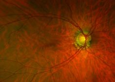 Glaucoma research points to changes in retinal blood vessels as first potential early indicator
