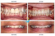Răng sứ Emax đem lại tính thẩm mỹ hoàn hảo