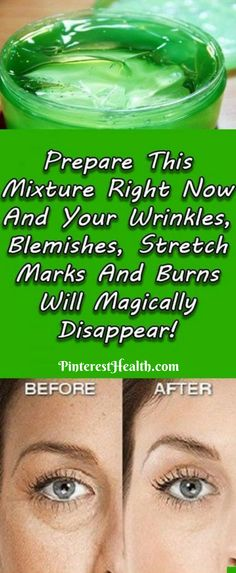 Stretch marks,  wrinkles, blemishes and burns are common problems among people nowadays, especially women.