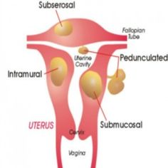 Effective Diets To Shrink Uterine Fibroids