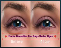 Home Remedies For Bags Under Eyes | Remedies Corner