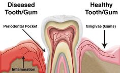 "George A Sanchez DDS on Twitter: ""Depicted is the difference between healthy and diseases gums. #drgeorgedental #healthygums #dentistindelraybeachfl #Dentistryindelraybeach https://t.co/GQsjZForkw"""