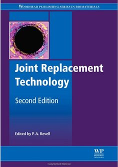 Joint Replacement Technology (2014). P. A. Revell