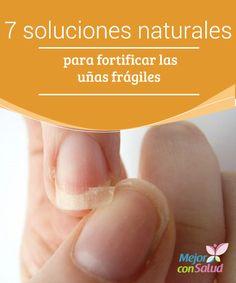 7 soluciones naturales para fortificar las uñas frágiles  ¿Tienes las uñas frágiles y quebradizas? Te compartimos 7 soluciones naturales para aliviarlas.