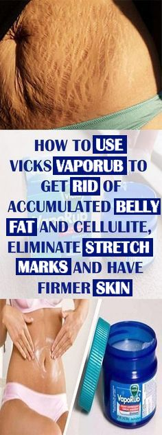 How to Use Vicks VapoRub to Get Rid of Accumulated Belly Fat and Cellulite, Eliminate Stretch Marks and Have Firmer Skin Vicks Vaporub, Skin Treatments, Skin Firming, Skin Tightening, Tips Belleza, Healthy Skin, Healthy Snacks, Health And Fitness, Beauty Tricks