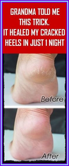 GRANDMA TOLD ME THIS TRICK. IT HEALED MY CRACKED HEELS IN JUST 1 NIGHT!!! Herbal Remedies, Health Remedies, Home Remedies, Natural Remedies, Medicine Book, Herbal Medicine, Natural Medicine, Healthy Tips, How To Stay Healthy