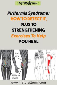Piriformis Syndrome: How To Detect It, Plus 10 Strengthening Exercises To Help You Heal Piriformis Syndrome: How To Detect It, Plus 10 Strengthening Exercises To Help You Heal Piriformis Exercises, Hip Strengthening Exercises, Hip Flexor Exercises, Sciatica Stretches, Back Pain Exercises, Sciatic Pain, Piriformis Syndrome Symptoms, Morning Yoga Flow, Psoas Muscle