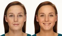 Facelift: Why Have Effective Facial Gymnastics Taken The Planet By Storm?Rubbing Facelift: Why Have Effective Facial Gymnastics Taken The Planet By Storm? Do Facial Exercises Work, Face Lift Exercises, Facelift Without Surgery, Face Transformation, Non Surgical Facelift, Face Tightening, Natural Face Lift, Facial Rejuvenation, Workout Results