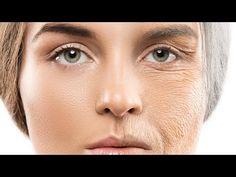 7 korzyści zażywania kolagenu + sposoby na pobudzenie jego syntezy - YouTube Anti Aging Serum, Best Anti Aging, Anti Aging Skin Care, Ayurveda, Home Remedies For Wrinkles, Alpha Hydroxy Acid, Sagging Skin, Wrinkle Remover, Aging Process