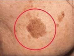 Truque simples para remover manchas marrons de sua pele - Receitas e Dicas Rápidas