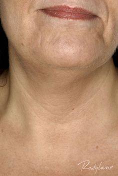 FØR: Halsen har tynn og sårbar hud. Restylane kan enkelt gjøre den yngre. Den