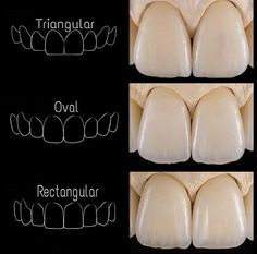Dentaltown - Which tooth shape do you like the best; Triangular, Oval, or Rectangular? Which shape do you think is better for Women vs Men?