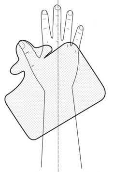 Splinting Guide - 6. Long Thumb Splint | Orfit Industries
