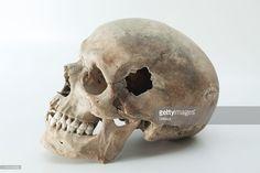 Bilderesultat for human skull