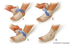 Applying a compression wrap for a sprained ankle | WebMD ( RICE: http://www.mayoclinic.com/health/first-aid-sprain/FA00016)