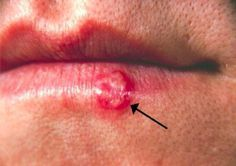 Herpes simplex virus (HSV), or commonly known as a cold sore, lesion on the lower lip, second day after onset. Blister On Lip, Fever Blister Causes, Virus Del Herpes Simple, Essential Oil Blends For Colds, Essential Oils, Home Remedies, Natural Remedies, Healing Cold Sore, Witch Hazel For Skin