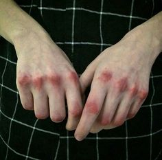 Mikhail Entin's hands healing after his fight with his brother, Sergei