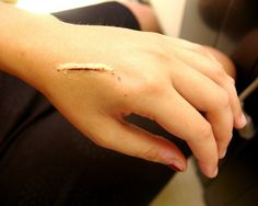 How To Remove Scars Naturally - Natural Scar Removal Tips