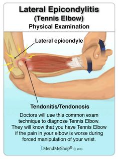 Treating Tennis Elbow After Diagnosis. Too many people only focus on suppressing pain symptoms while providing less attention to the true healing aspects of the body. Scar tissue can remain for months after one gets to a point of being relatively pain-fre Tennis Arm, Elbow Pain, Medical Anatomy, Muscle Anatomy, Plantar Fasciitis, Massage Therapy, Health And Wellness, Tennis Elbow Relief, Tennis Elbow