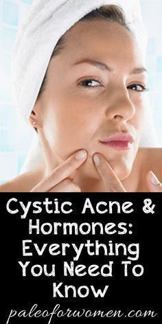 Cystic Acne and Hormones: Everything You Need To Know - Paleo for Women #homemadefacemasksformen #AcneAndOilySkin