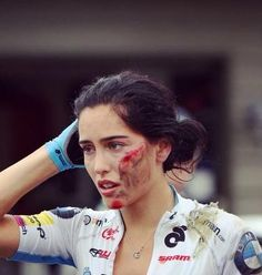 cyclist with race crash injuries to her face