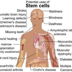 Stem cells  .. heard great things about it...