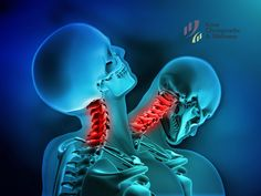 Find Whiplash Neck Injury stock images in HD and millions of other royalty-free stock photos, illustrations and vectors in the Shutterstock collection. Jaw Pain, Neck Pain, Dr Car, Whiplash Injury, Neck Injury, Severe Headache, Spinal Stenosis, Memory Problems, Frozen Shoulder