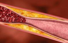 El tratamiento con niacina mejora las anormalidades de lipoproteínas. Reduce el colesterol LDL, triglicéridos y Lp(a), mientras aumenta el colesterol bueno.
