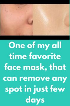 One of my all time favorite face mask, that can remove any spot in just few days Ingredients required : Neem powder Multani mitti Red sandalwood powder Coconut oil Haldi Rose water Directions to follow : Take3/4th tsp sandalwood powder Add1/4 spoon multani mitti Add pinch of haldi Add little bit of neem powder Mix it well and store this powder in air tight container For use take this powder as per …