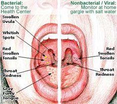 tonsillitis-picture.jpg (300×268)