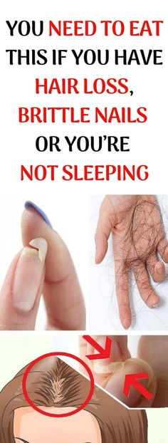 You Need To Eat This If You Have Hair Loss, Brittle Nails Or You'Re Not Sleeping well – naturalremedies Health And Wellness, Health And Beauty, Health Fitness, Holistic Wellness, Wellness Tips, Natural Cures, Natural Health, Natural Honey, Natural Treatments