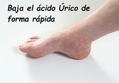 Bajar El ácido Urico