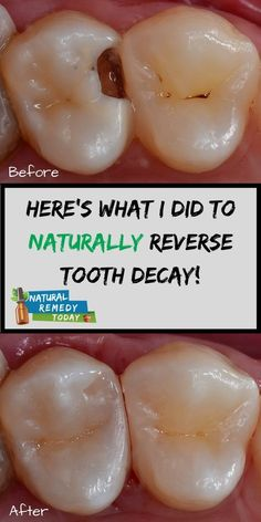 5 amazing ways to heal tooth decay and reverse cavities naturally! 5 amazing ways to heal tooth decay and reverse cavities naturally! Teeth Health, Dental Health, Oral Health, Health Care, Healthy Teeth, Dental Care, Natural Cures, Natural Health, Tooth Decay In Children