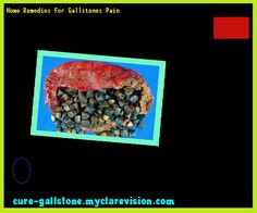Home Remedies For Gallstones Pain 144958 - Cure Gallstone